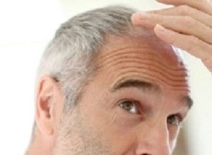 Grey hair linked with increased heart disease risk in men