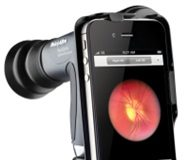 Smartphone ophthalmic imaging