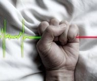 Cause of suffering decisive in euthanasia