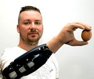 'Bionic reconstruction' first