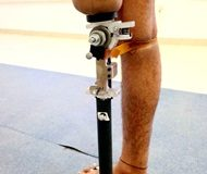 Cheap, high performance prosthetic knee tests in India