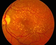 First UK patient receives stem cell treatment for macular degeneration