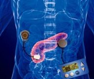 Artificial pancreas in final trials