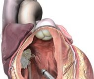 FDA approves self-contained non-wired pacemaker