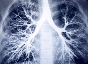 AsthmaFocusWEB