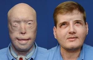 FaceTransplantWEB