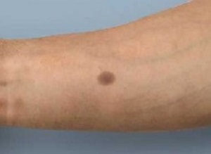 Artificial mole as an early warning of cancer