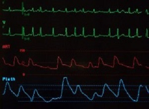 Noise levels link to increased incidence of atrial fibrillation