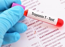 New high-sensitivity troponin test reduces heart attack risk