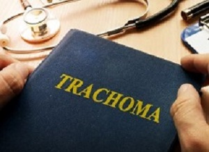 Ethiopian trial finds trachoma not eliminated by mass antibiotic prophylaxis