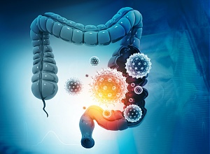 Antibiotic use linked to increased risk of colon cancer — large Swedish analysis
